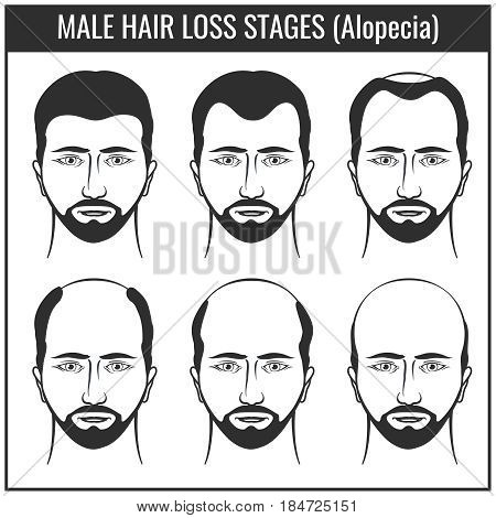 Hair loss stages and types of baldness. Man hairs problem vector charts. Problem with hair, illustration of hair loss
