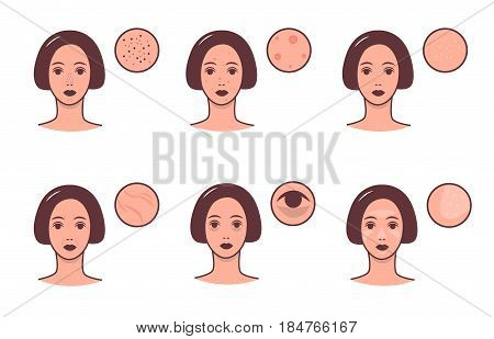 Set of female faces with various skin conditions and problem. Skincare and dermatology concept. Vector colorful illustration