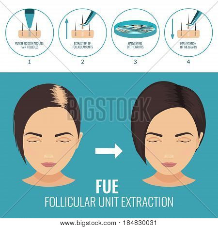 Female hair loss treatment with follicular unit extraction. Stages of FUE procedure. Alopecia infographic medical template for transplantation clinics and diagnostic centers. Vector illustration.