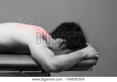 Chinese Medicine Doing Acupuncture To Man Patient, Red Pain Color.