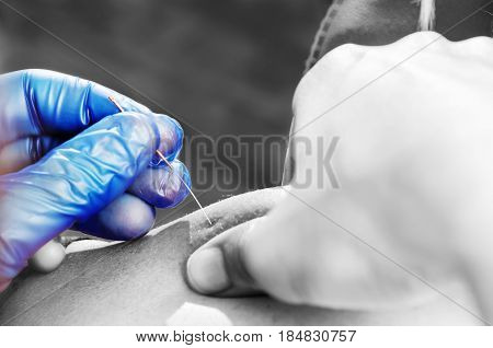 Needle And Hands Of Physiotherapist Doing A Dry Needling In Silhouette Studio On White Background.