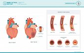 Heart attack and atherosclerosis medical illustration: healthy and damaged heart blood vessel section with fatty deposit accumulation poster