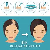 Female hair loss treatment with follicular unit extraction. Stages of FUE procedure. Alopecia infographic medical template for transplantation clinics and diagnostic centers. Vector illustration. poster