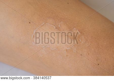 Close Up Detail Of A Very Bad Sunburn Showing The Peeling Skin Of A Mans Back, Skin Protection, Skin