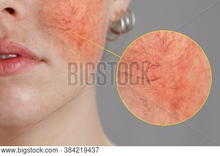 Cosmetology And Rosacea. Close-up Portrait Of Female Face, Cheeks With Severe Inflammation, Blood Ve