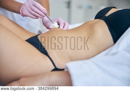 Dermatologist Using A Sterile Gauze Pad During The Medical Procedure
