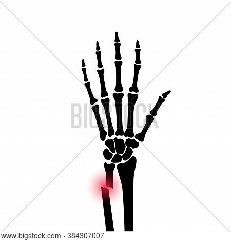 X Ray Of Arm Fracture With Red Pain Point And Inflammination. Broken Hand With Open Type Of Fracture