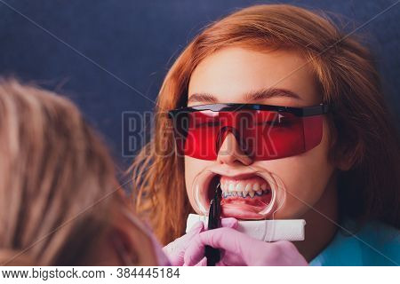 Close-up Portrait Of A Female Patient Visiting Dentist For Teeth Whitening In Clinic, Teeth Whitenin