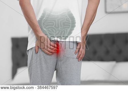 Man Suffering From Hemorrhoid At Home, Closeup. Unhealthy Bowel Illustration