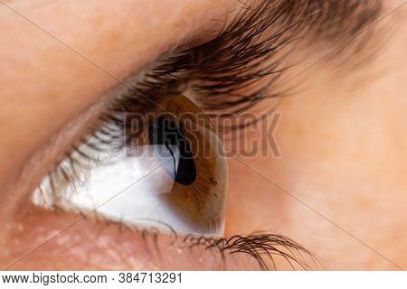Macro Eye Photo. Keratoconus 2 Degree - Eye Disease, Thinning Of The Cornea In The Form Of A Cone. T
