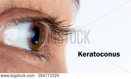 Macro Eye Photo. Keratoconus - Eye Disease, Thinning Of The Cornea In The Form Of A Cone. The Cornea