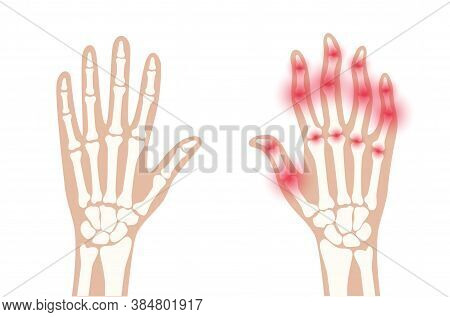 Pain And Inflammation In Hand. Normal And Sore Arms. Rheumatoid Arthritis Symptom On Human Joints An