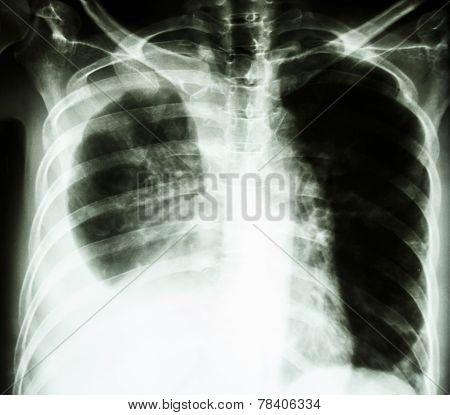 Pleural Effusion Due To Lung Cancer