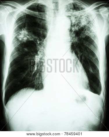 film chest x-ray show alveolar infiltrate at left upper lung and right middle lung due to Mycobacterium tuberculosis infection (Pulmonary Tuberculosis) poster
