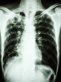 film chest x-ray show cavity at right upper lung due to Mycobacterium tuberculosis infection (Pulmonary Tuberculosis) poster