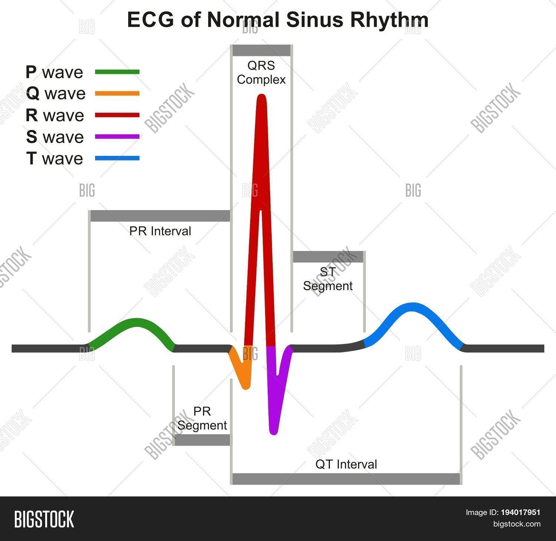 ECG Normal Sinus Image & Photo (Free Trial)