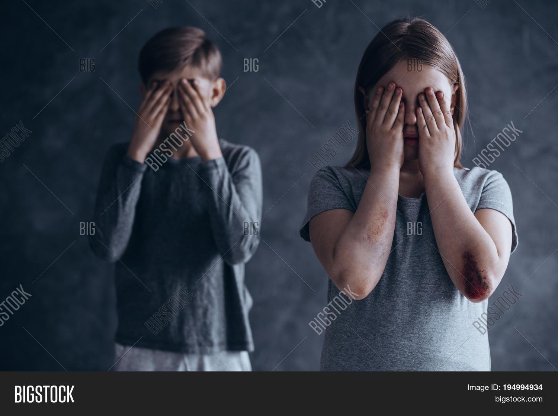Injured Terrified Image & Photo (Free Trial)   Bigstock