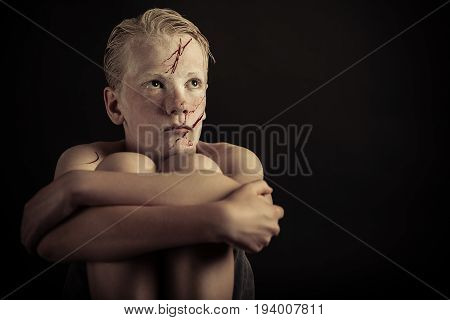 Scared Boy With Blood Spattered Face Hugs Knees