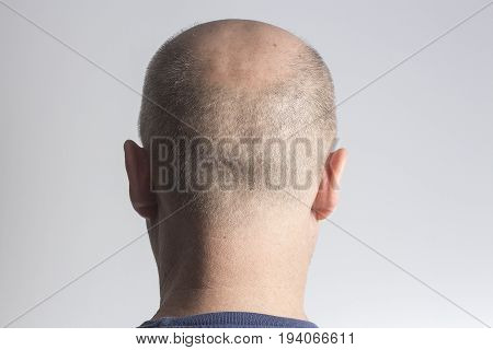 stressed Sad bald man on white backgroundhair loss baldness