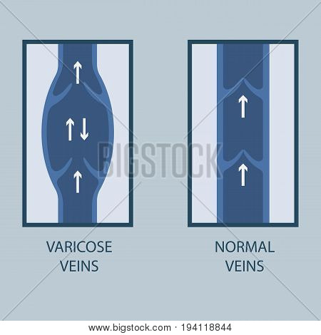 Vector Illustration Of A Varicose Vein And Normal Vein. Flat Style.