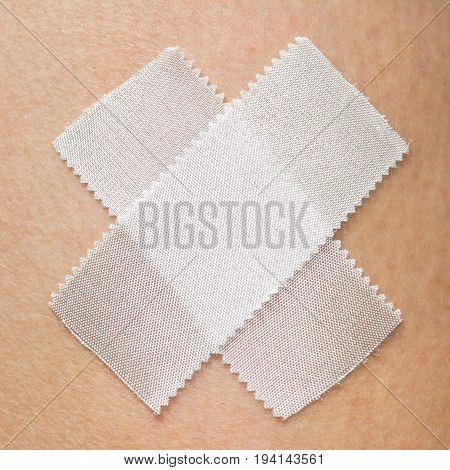 Pieces of white medical plaster in the form of a cross. Glued to human skin. Square photo.