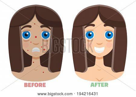 laser peeling before & after. Vector illustration