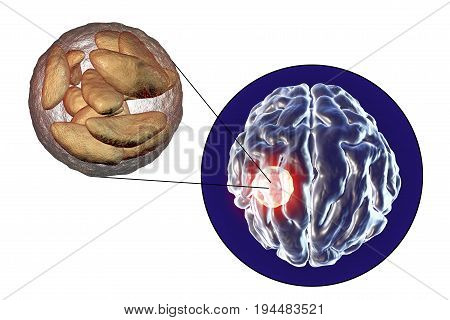 Brain abscess caused by parasitic protozoan Toxoplasma gondii and close-up view of Toxoplasma parasites inside abscess cavity, 3D illustration