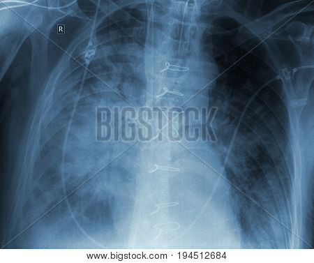 X-ray film of patient with complication after surgery.