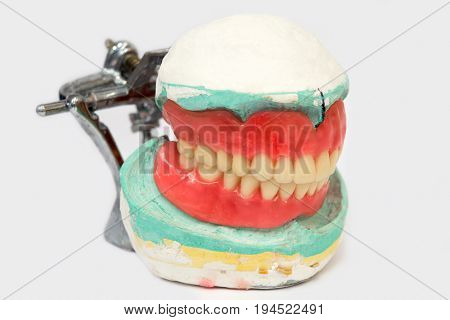 Generic image of a denture or crown used in modern dentistry.