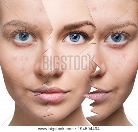 Young woman recovery over split old skin. Before and after acne.