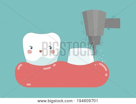 Dental crown installation process , tooth and teeth of dental concept