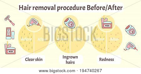 Flat vector hair removal aftereffects infographics. Comparison of hair removal before procedure and after effects view - clear skin redness and ingrown hairs