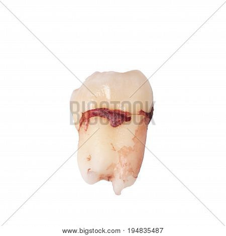 Extracted wisdom tooth stained with blood isolated on the white background