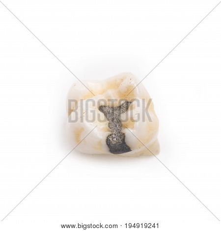 Filling primary tooth molar tooth on white background