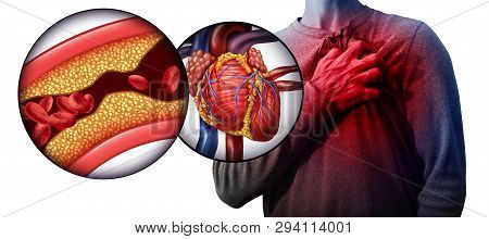 Myocardial Infarction As A Person Suffering From A Heart Attack Due To Clogged Coronary Artery As A