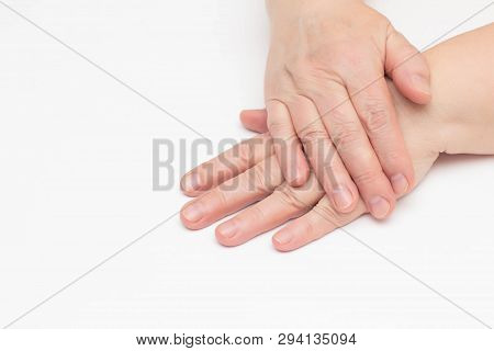 The Hands Of An Elderly Woman On A White Background Which Has Skin Problems, Dry And Cracked Skin On