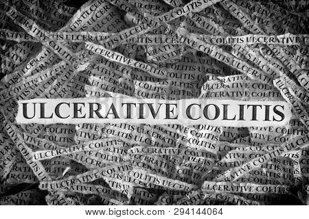 Ulcerative Colitis. Torn Pieces Of Paper With The Words Ulcerative Colitis. Concept Image. Black And