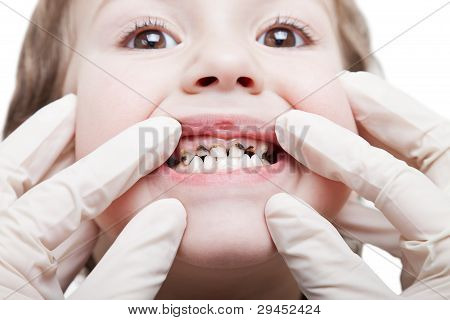 Caries Teeth Decay