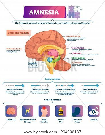 Amnesia Vector Illustration. Labeled Brain Memory Loss Disease Types Scheme. Diagram With Cerebral,