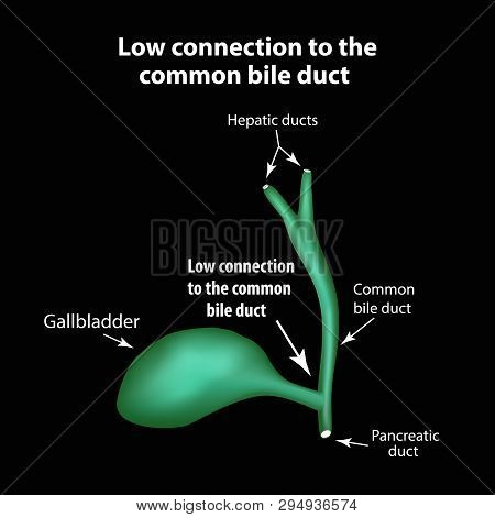 Low Connection To The Common Bile Duct. Pathology Of The Gallbladder. Cholecystitis. The Structure O