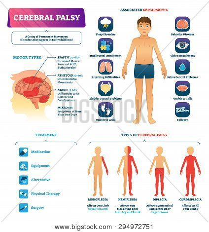 Cerebral Palsy Vector Illustration. Labeled Permanent Movement Disorder Type Scheme. Medical Educati