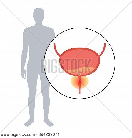 Prostatitis Swelling And Inflammation Of Prostate Gland. Painful And Difficult Urination Diagnosis.