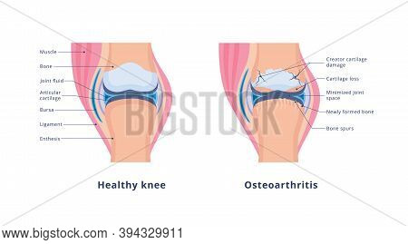 Vector Banner With Medical Anatomy With Knee Osteoarthritis And Normal Joint
