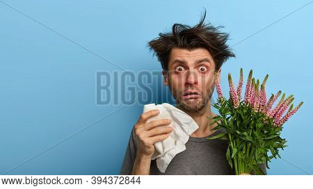 Frustrated Young Man Suffers From Terrible Allergy, Sneezes And Uses Tissue, Reacts Shocked On Havin