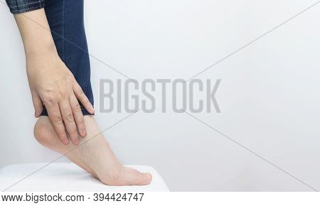 An Orthopedic Examines A Woman's Leg. Heel Pain, Tendon Stretching, Inflammation, Heel Spur. Foot Di