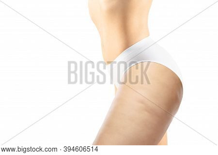 Side View. Overweight Woman With Fat Cellulite Legs And Buttocks, Obesity Female Body In White Under
