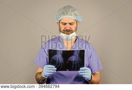 Man Look At Roentgen. Radiologist Hold Xray. Doctor Examines Radiographical Snapshot. X-raying Of Ha