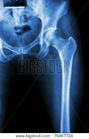 Normal Pelvis & Hip Joint