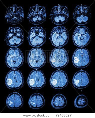 Mri Brain : Brain Tumor At Right Parietal Lobe