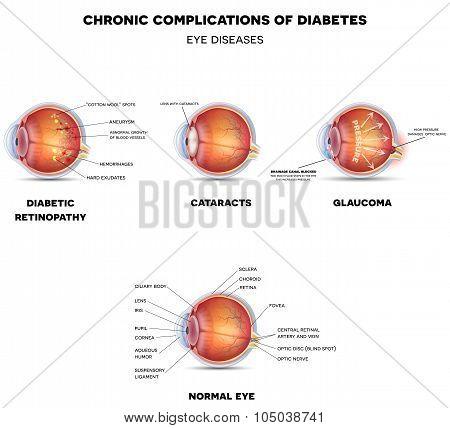 Diabetic Eye Diseases